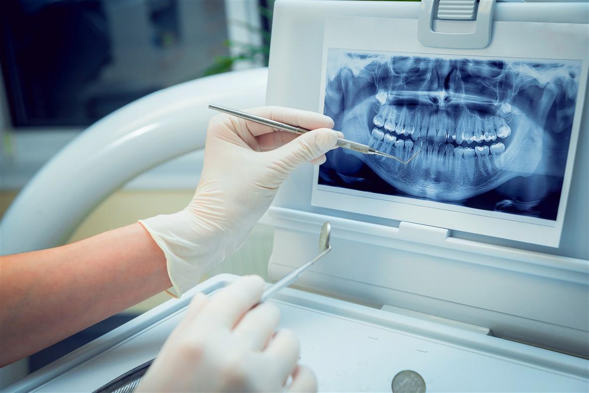 Dental Imaging Edmonton