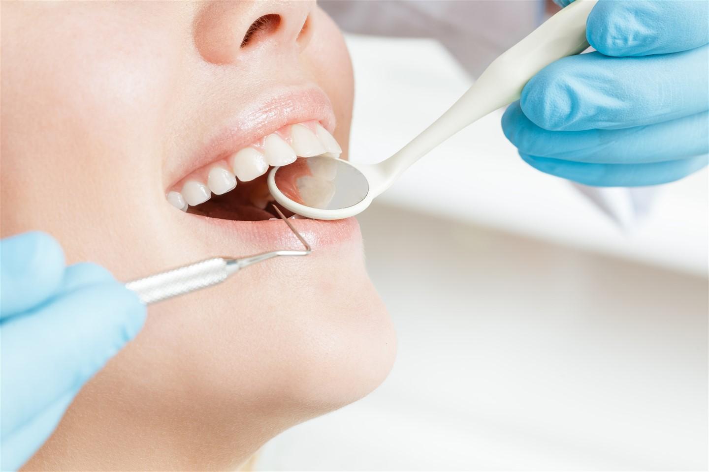 White Fillings-Dental clinic