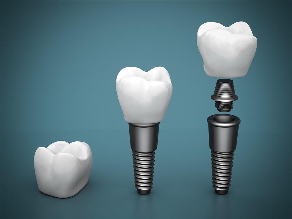 Affordable Dental Crowns and Bridges