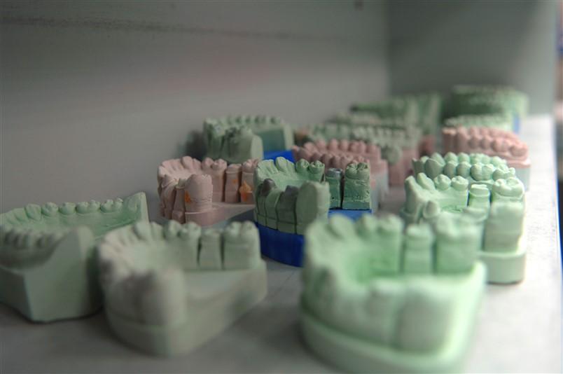 Denture molds