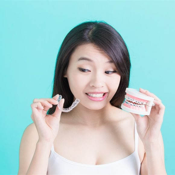 Wires or Aligners – Pros & Cons